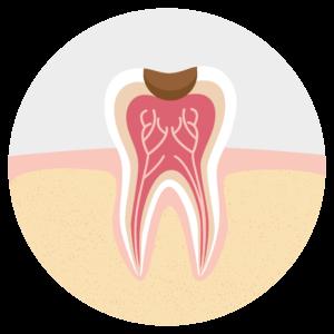 Ablauf Wurzelbehandlung: Zahnschmerzen durch Karies